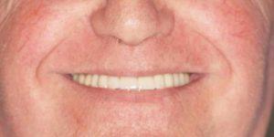 Rehabilitación con implantes y elevación de seno DESPUES 2