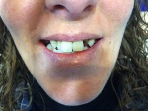 Rehabilitación con prótesis fija, para mejorar malposición dental y reponer ausencias ANTES