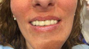 Rehabilitación con prótesis fija, para mejorar malposición dental y reponer ausencias DESPUES