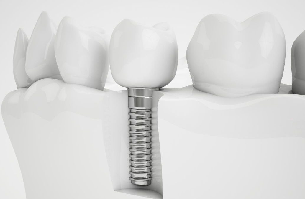 Implantes de carga inmediata e Implantes especiales