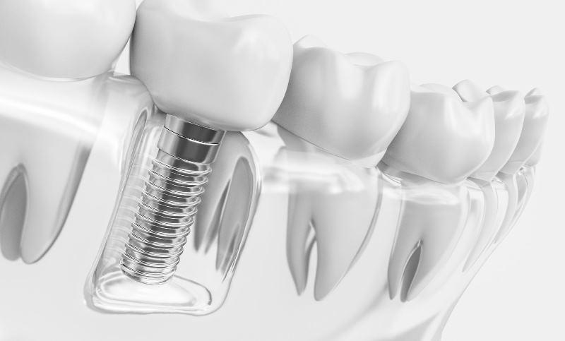 Prótesis fabricadas con tecnología CAD-CAM dental