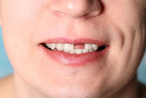 caida de dientes