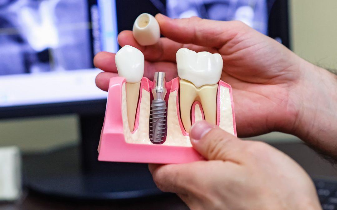 Implantes dentales y sus beneficios