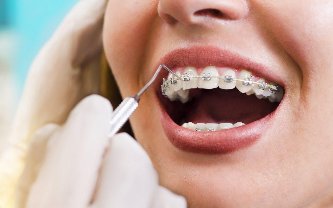 Ortodoncia fija vs. Ortodoncia invisible