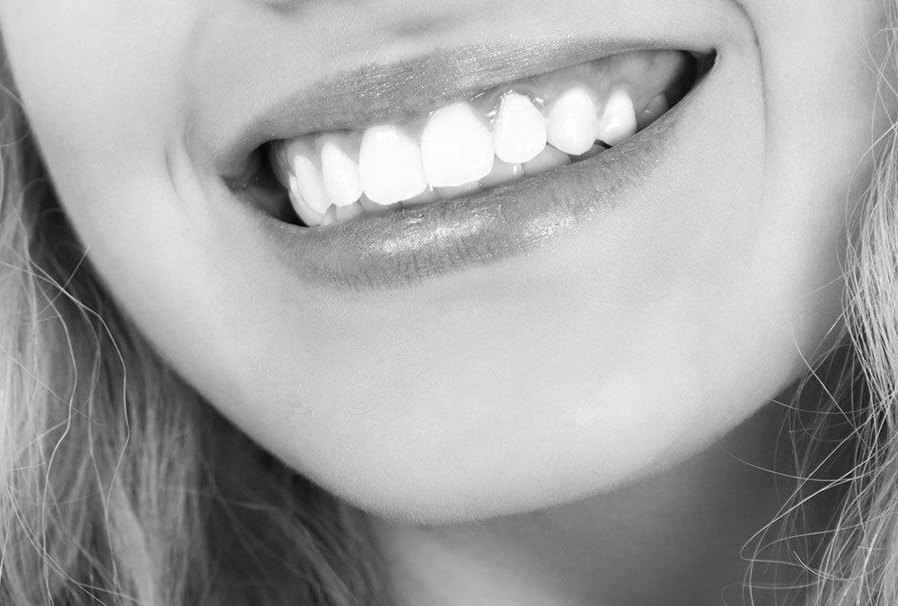 Blanquear los dientes: 7 motivos para hacerlo